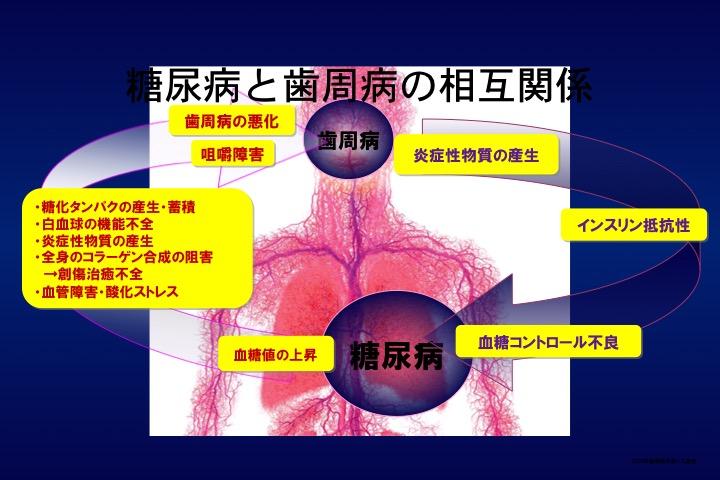 図2:糖尿病と歯周病の相互関係