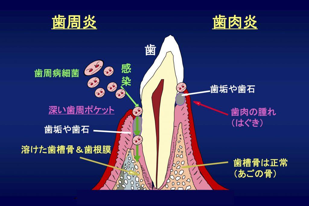 図1:歯の構造と歯周病